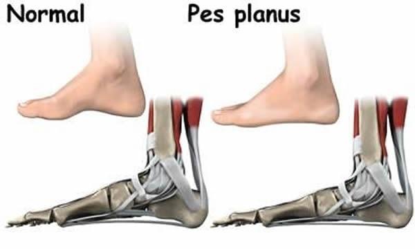Flatfootedness /Pes planus/ | Ортопедични обувки - DrOrthopedic